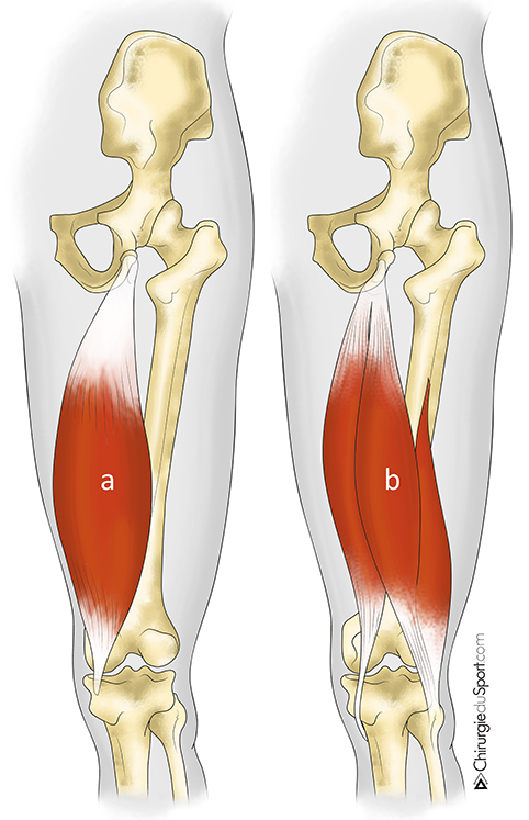 treatments - HIP - Tendon - High acute rupture of the hamstring ...